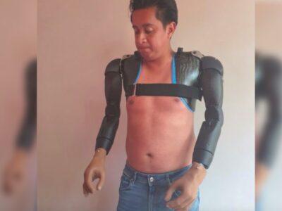 Prótesis biónicas