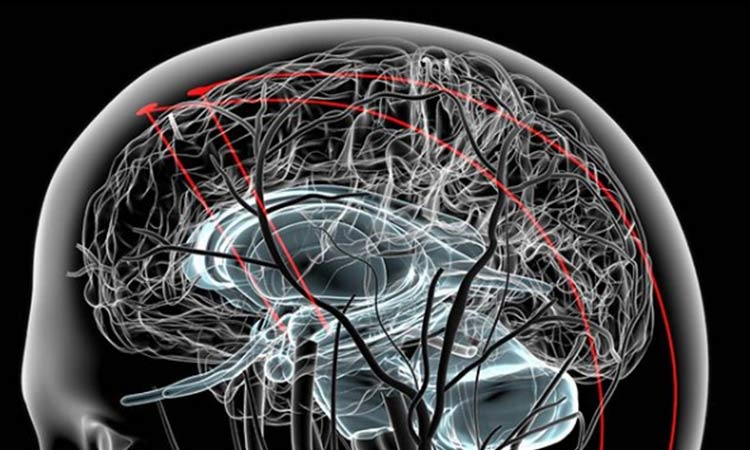 Neuralink: Elon Musk anuncia proyecto para conectar cerebros y computadoras