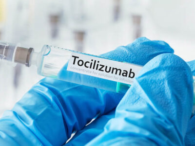 tocilizumab y covid-19