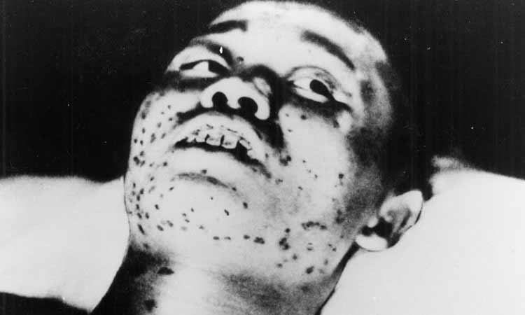 Bombardeos a Hiroshima y Nagasaki: consecuencias a la salud