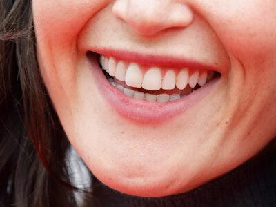 Tiktok: dentistas alertan por nueva tendencia viral