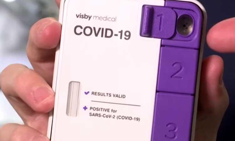 Estados Unidos aprueba test para detectar COVID-19 en 30 minutos