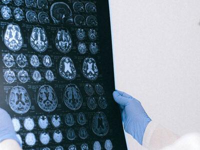 Ofrecen consejos para rejuvenecer el cerebro