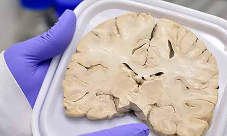 BANCO DE CEREBROS DE LA UNAM es para estudiar Alzheimer