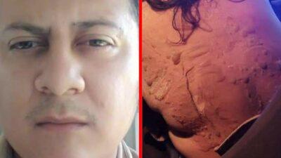 Veracruz: Denuncian a hombre que atacó a su esposa con aceite caliente