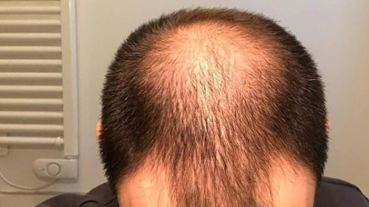 alopecia COVID-19