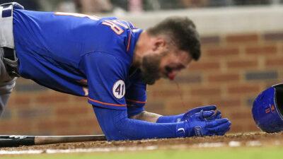 Video: beisbolista recibe pelotazo en el rostro a 150 km/h