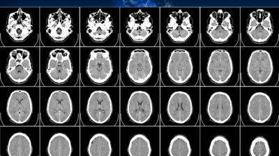 Misteriosa enfermedad cerebral desconcierta a médicos de Canadá