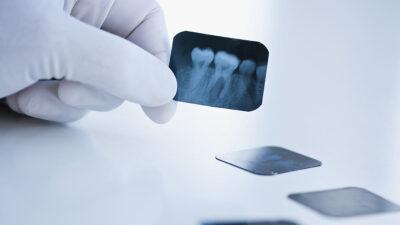 Dentista se quita las muelas del juicio sin ayuda y lo sube a redes