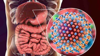 Hepatitis C es la más frecuente y peligrosa: ve señales de alerta